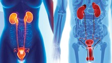 Urology Solutions
